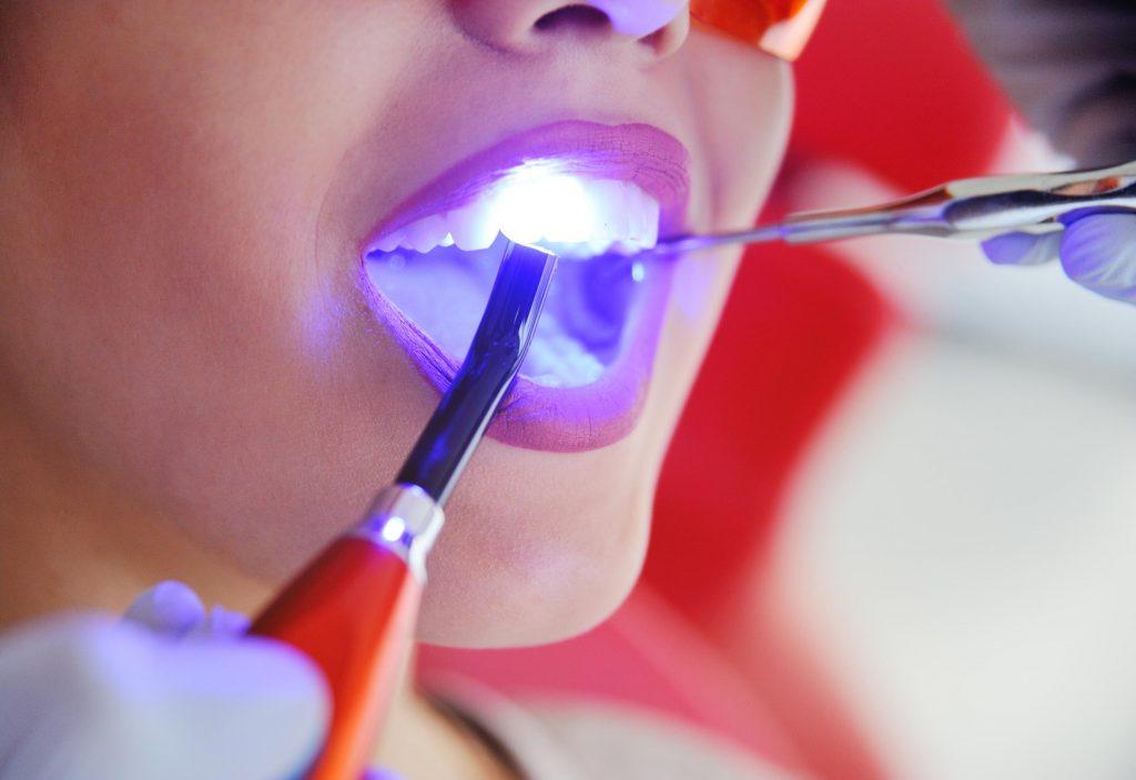 Zahnfüllungen Frontzahnaufbau mit Kompositen Zahnarztpraxis Dr. Freund & Kollegen Berlin