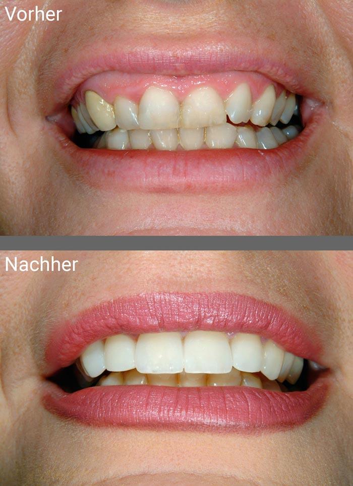 Schöne Zähne mit Veneers aus Keramik Zahnarztpraxis Dr. Freund & Kollegen Berlin