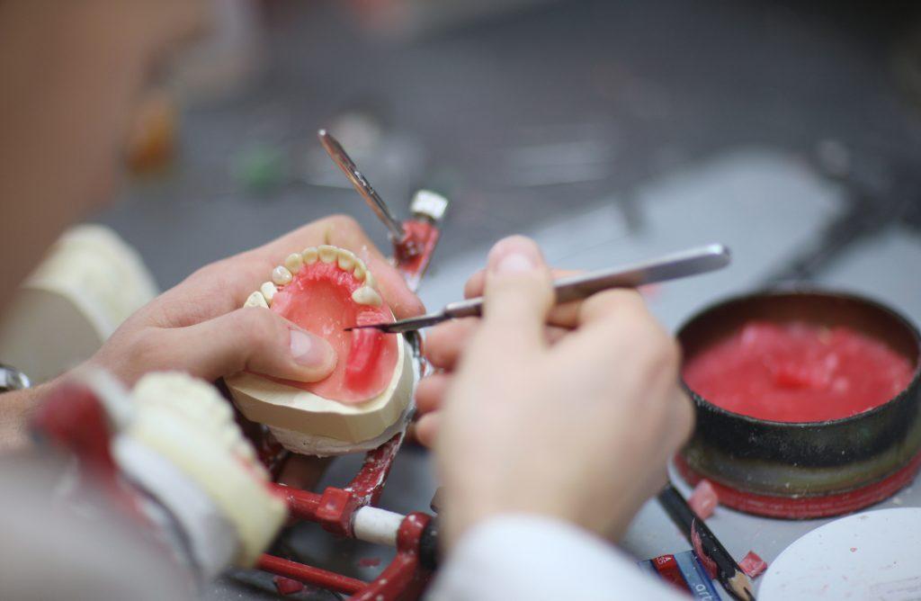 Zahnprothese Anfertigung im Labor Dr. Freund & Kollegen Berlin